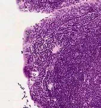 Shotgun Histology Pharyngeal Tonsil - YouTube