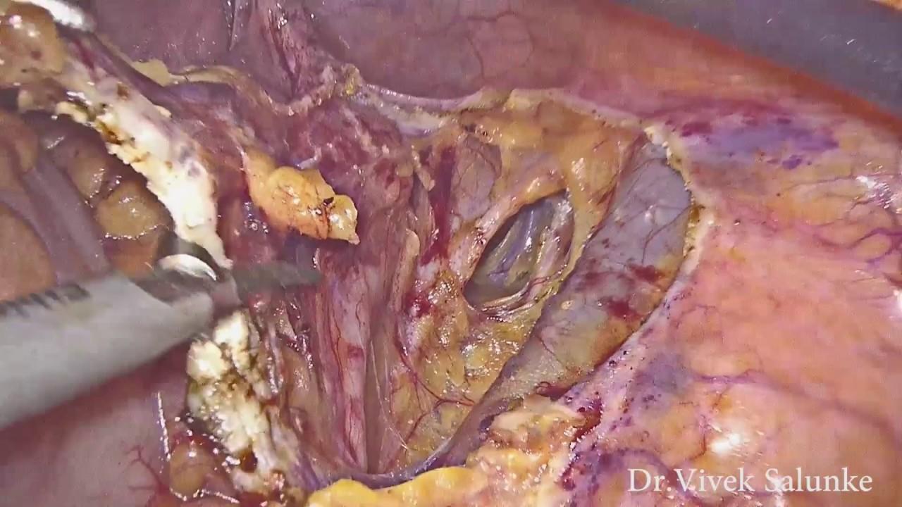 Krūtinės ląstos metodas didelėms retroperitoninėms masėms: atvejų serija ir apžvalga