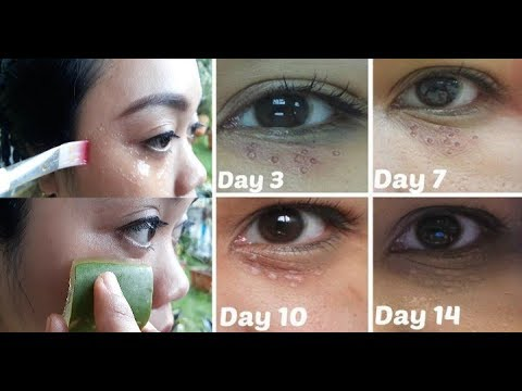 Wow Amazing Remove All Milia Permanently Get Rid Of Milia