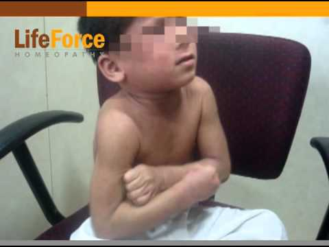 Atopic Dermatitis (eczema): Severe itching in a child