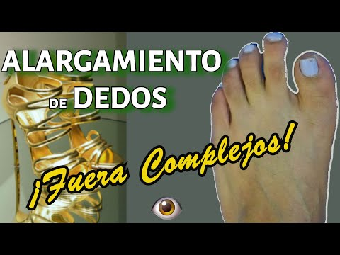 dedos de la diabetes quebrarse y partirse