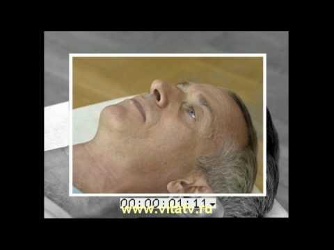 Заболевания ног: варикоз, артрит, тромбофлебит