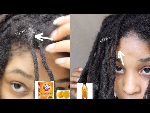 acv-rinse-for-dirty-locs:-great-results!