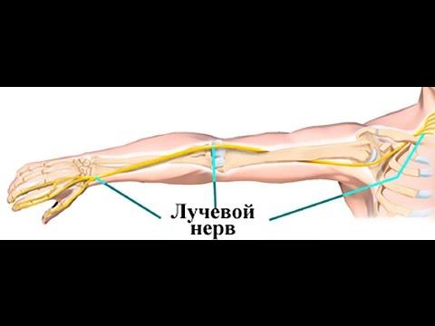 артрит, перелом, гигрома пальцев и кисти