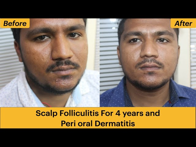 Scalp Folliculitis For 4 years and Peri oral Dermatitis Homoeopathic Cure