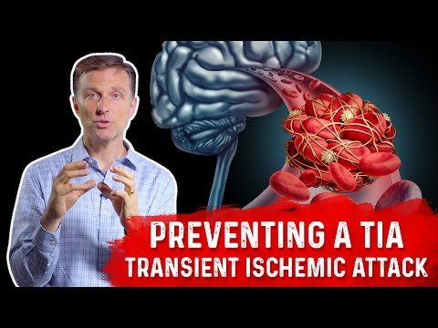 Preventing a Mini-Stroke -TIA (Transient Ischemic Attack)