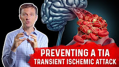 Preventing a Mini-Stroke -TIA (Transient Ischemic Attack)