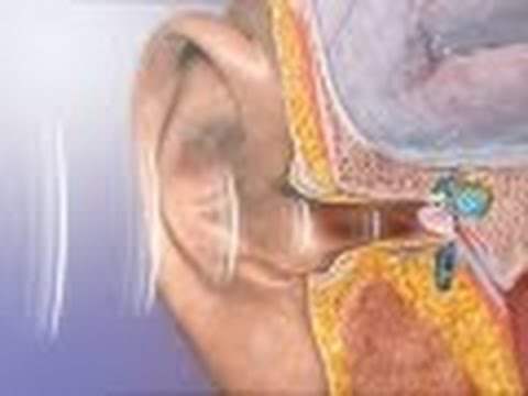 Anatomy and Physiology of Hearing