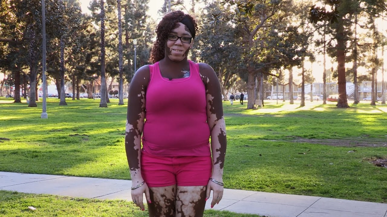 Skin condition leaves woman with two skin colors youtube skin condition leaves woman with two skin colors publicscrutiny Choice Image