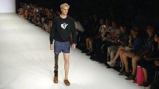 Schönster Mann auf einem Bein: Ein Topmodel mit Makel