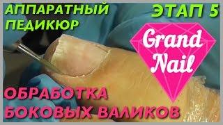 Аппаратный Педикюр Обработка Боковых Валиков Игольчатой Фрезой Этап 5