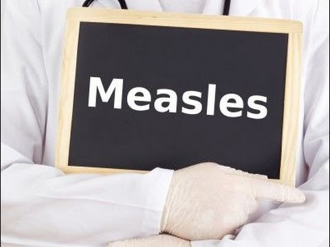 USMLE:  Medical Video Lectures about Measles by UsmleTeam