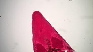 Platynosomum fastosum