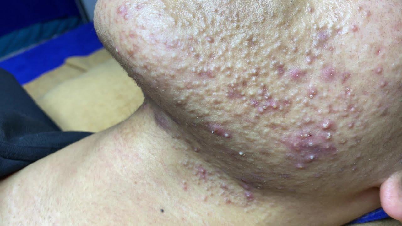 Download Best Pimple Popping P1 | Mụn Dậy Thì Siêu Hấp Dẫn P1 - SacDepSpa#181