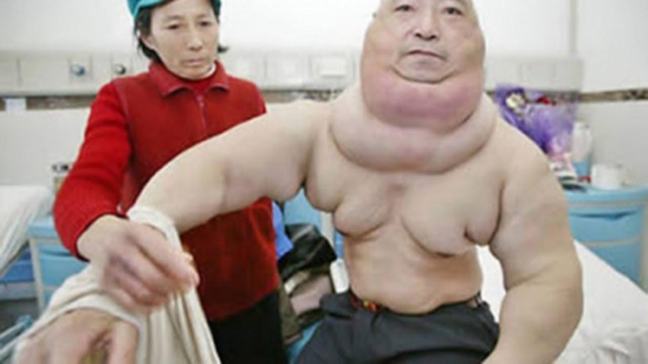 Tumor Fat 31