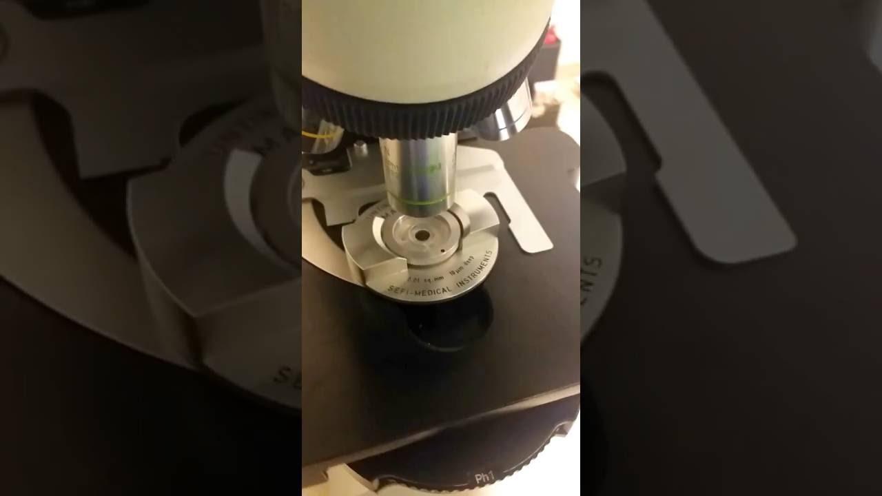 Spermogram nasıl alınır