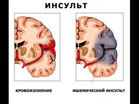 Геморрагический инсульт головного мозга: последствия