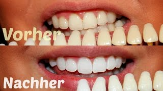 WEISSE ZÄHNE - Alles über meine weißen Zähne