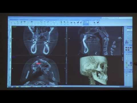 Clinical CBCT cases   Prof  Max Heiland