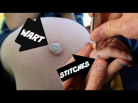 Download Youtube: Warts, Stitches and Shots