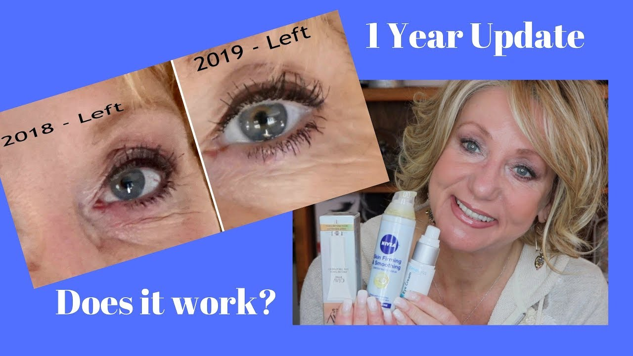 Retin-A and Retinol Treatment for Deep Eye Wrinkles | Before and After