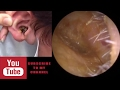 Take earwax - Ear wax extraction | Hardest Granite-like Massive Earwax Removal