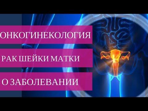 РАК ШЕЙКИ МАТКИ - симптомы, причины, диагностика и лечение💉💊