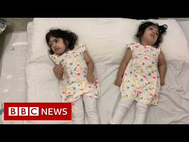 Conjoined twins return home after successful separation - BBC News