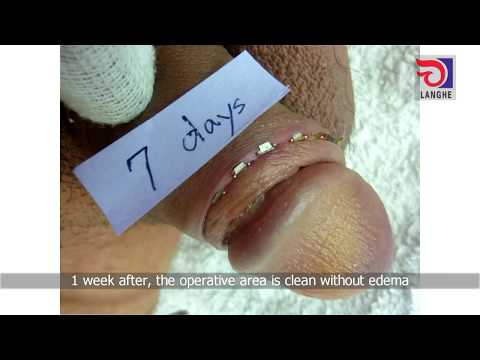LangHe Medical — Disposable Circumcision Suture Operation Video - Adult