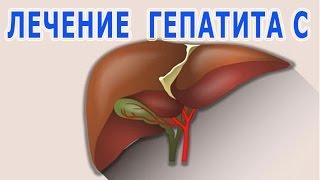 ★ЛЕЧЕНИЕ вирусного ГЕПАТИТА С. Альтернативные способы лечения. Эффективность терапии.