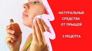 Натуральные средства от прыщей 3 рецепта для ухода за кожей
