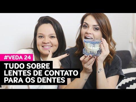VEDA 24: Tudo sobre lentes de contato para os dentes (indicações, dor, preço...) • Karol Pinheiro