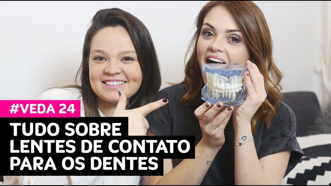 VEDA 24  Tudo sobre lentes de contato para os dentes (indicações, dor,  preço...) • Karol Pinheiro c35ebf5ab7