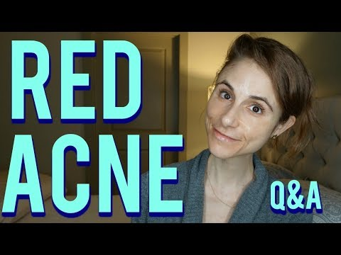 Red acne marks on the face: Q&A with a dermatologist|Dr Dray