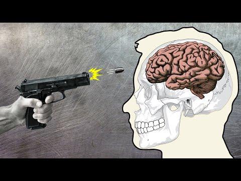 Anatomy Of A Headshot