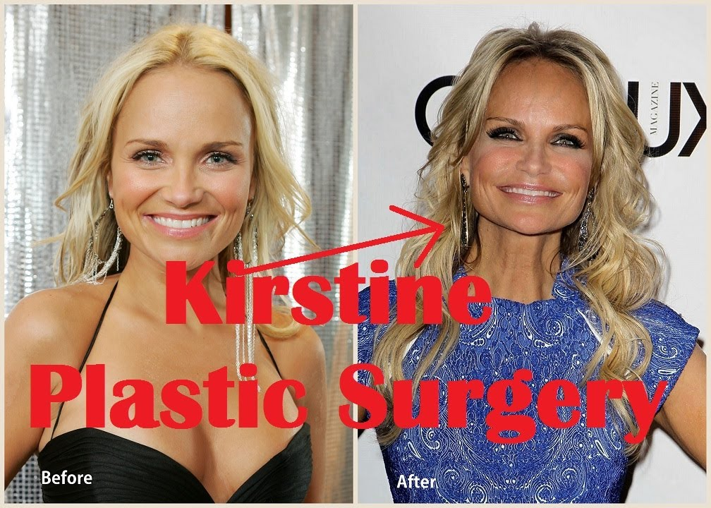Kristin Chenoweth Plastic Surgery Before And After Full Hd