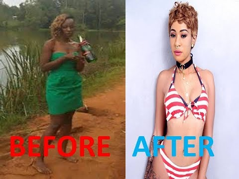 #NAIROBI DIARIES NOTI FLOW BEFORE AND AFTER PICS # LIGHTENIN