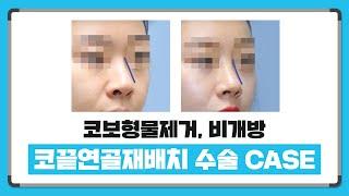 코보형물제거와 비개방 코끝연골재배치 사례