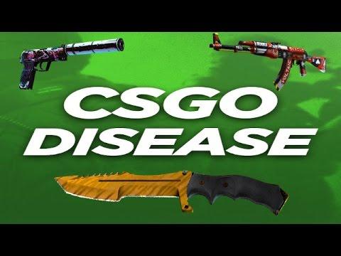 Csgo Case Opening Site