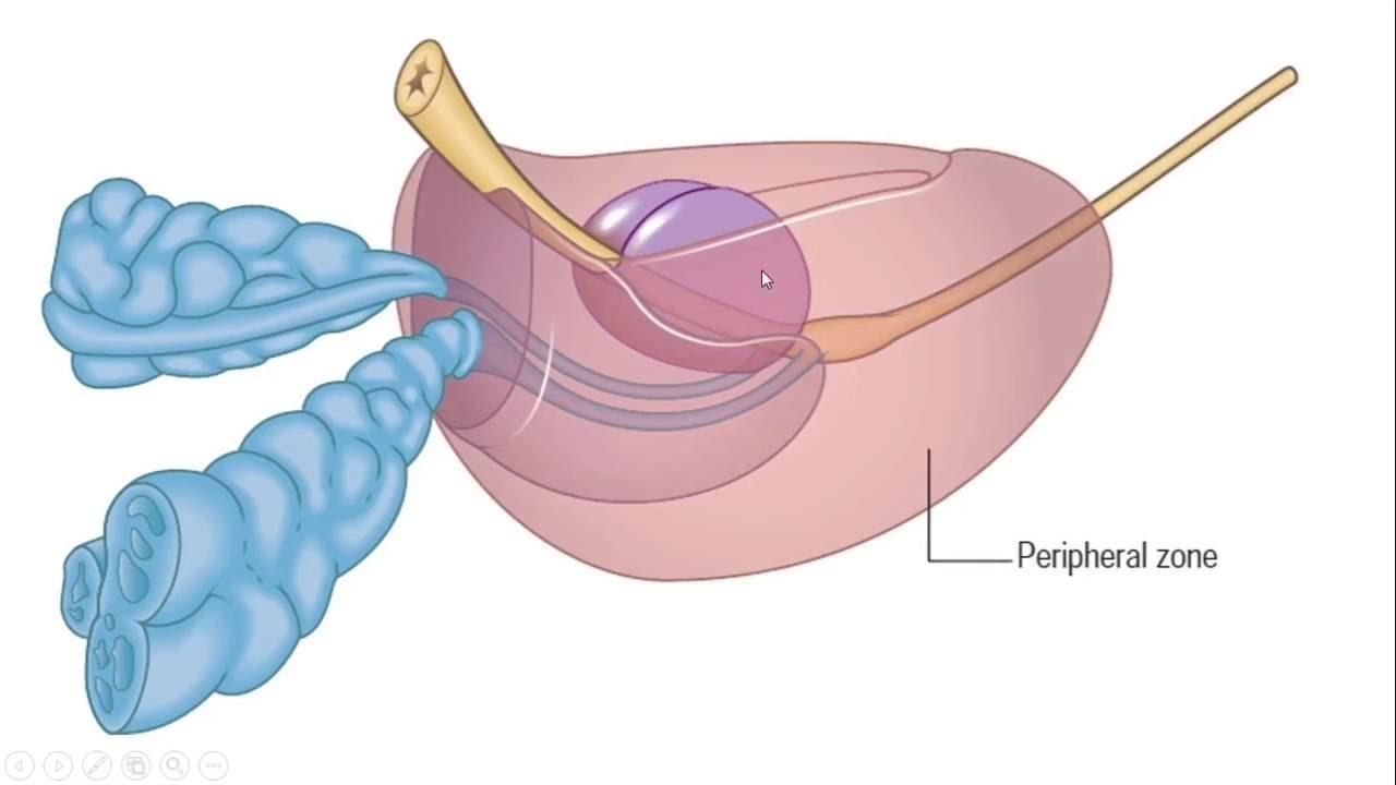 Benign Prostatic Hyperplasia Bph An Easy Explanation Part 1 Of