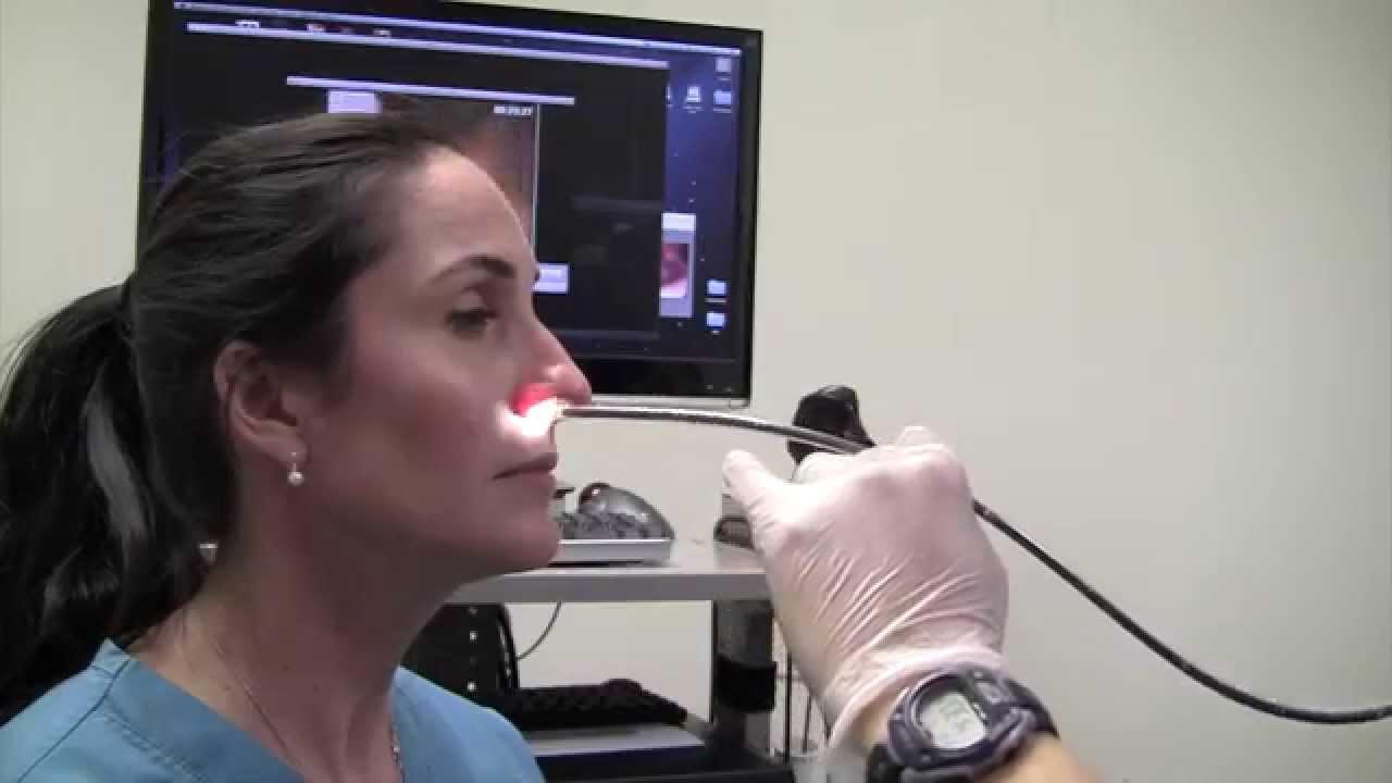Esophagoscopy Without Sedation (Trans-Nasal Esophagosco ...