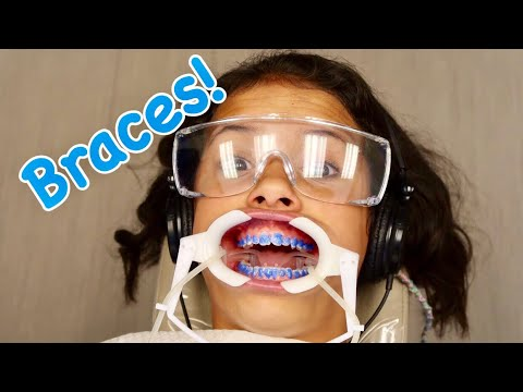 BRACES?!!! Teen Reacts to first day with Braces!
