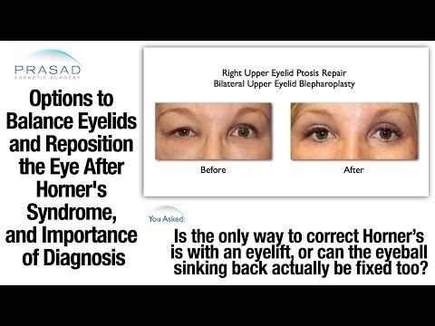 Cause of Horner's Syndrome Must be Determined before Corrective Eye and Eyelid Surgery