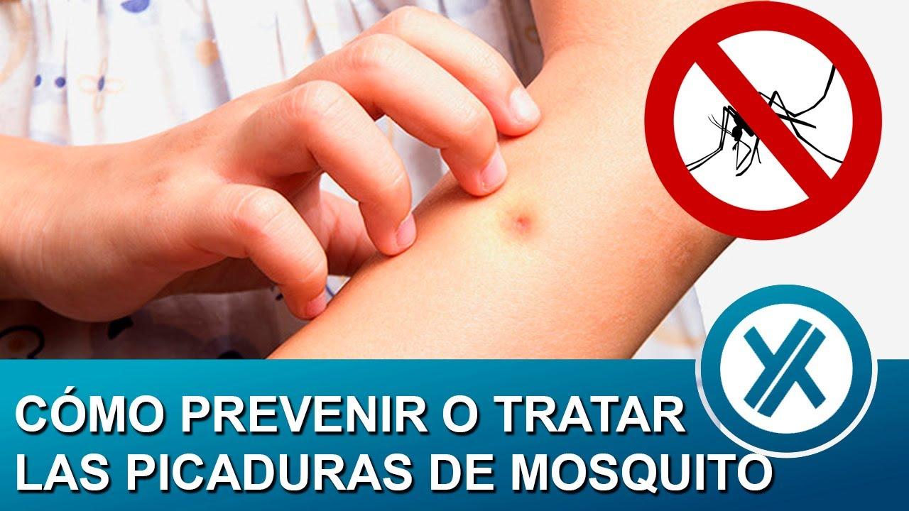 c mo prevenir o tratar las picaduras de mosquitos