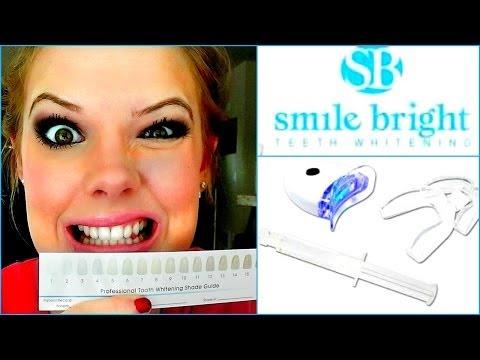 TEETH WHITENING VLOG: Smile Bright Whitening System