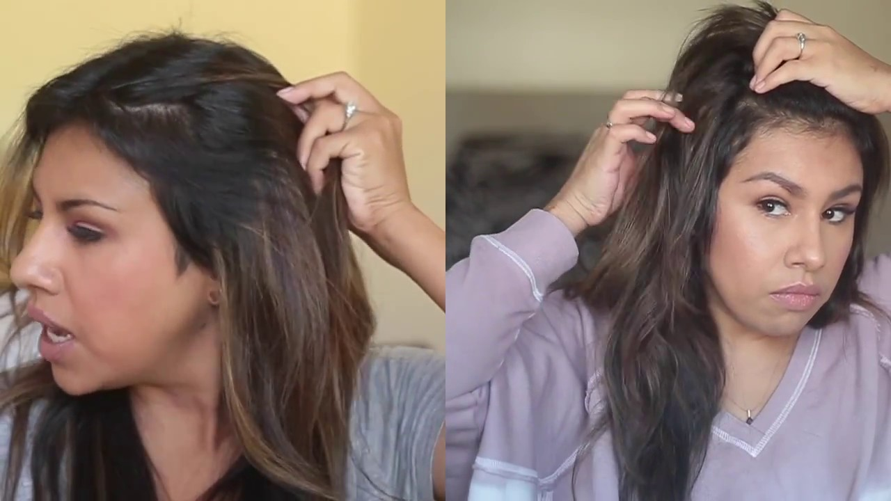 Hair Growth Update From Postpartum Hair Loss Youtube