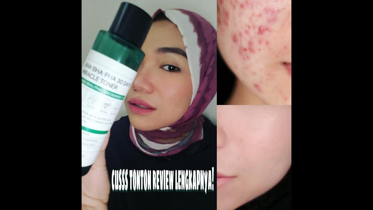 Review some by mi aha, bha, pha 30 days miracle toner and ...