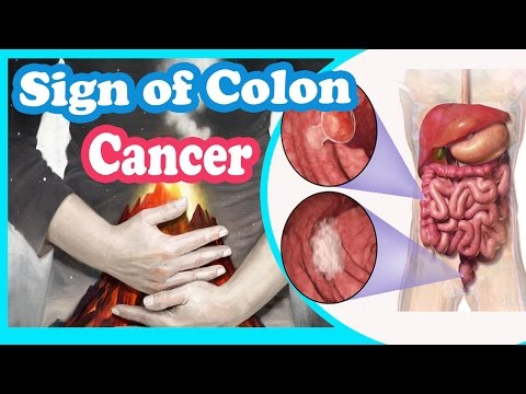 Treatment For Cancerous Colon Polyps