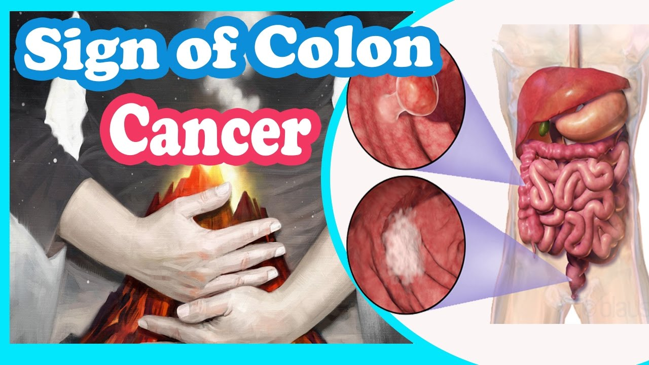 Signs And Symptoms Of Colon Cancer You Should Not Ignore Youtube