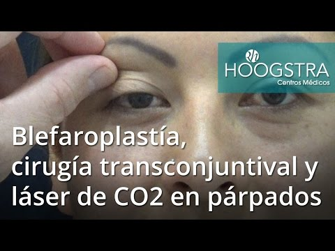 Blefaroplastía, cirugía transconjuntival y láser de CO2 en párpados (16127)